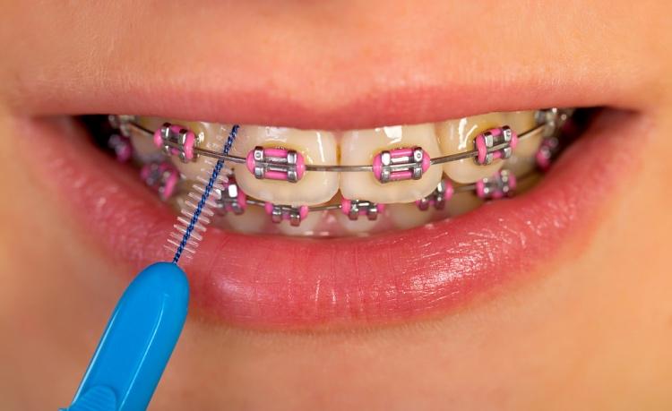 como cuidar la ortodoncia