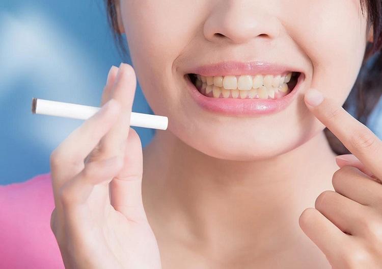 evitar perder los dientes