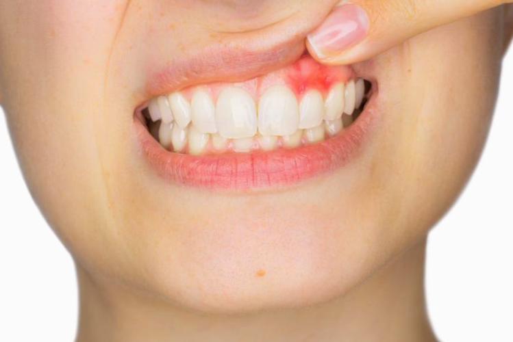 evitar la pérdida de dientes